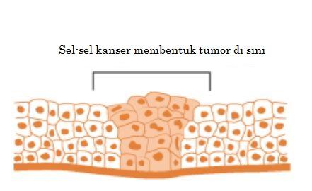 tumour_BM