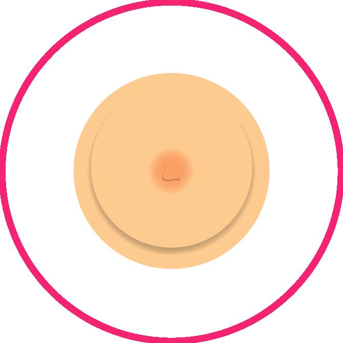 Nipple Shape/size Changes