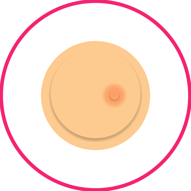 Nipple Position Changes