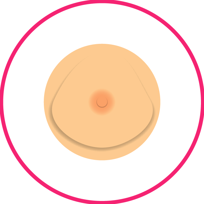 Breast Shape Changes