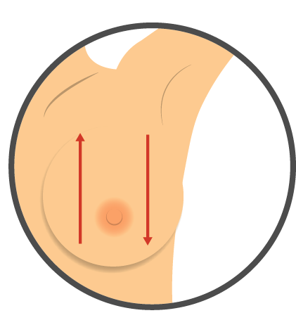 Check Your Breast Up And Down