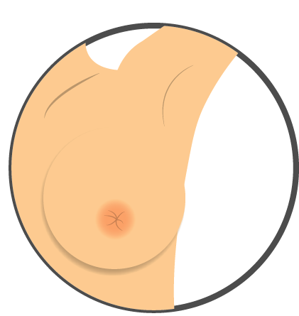 Check For Nipple Inversion Or Any Change In Direction, Nipple Rash Or Crusting